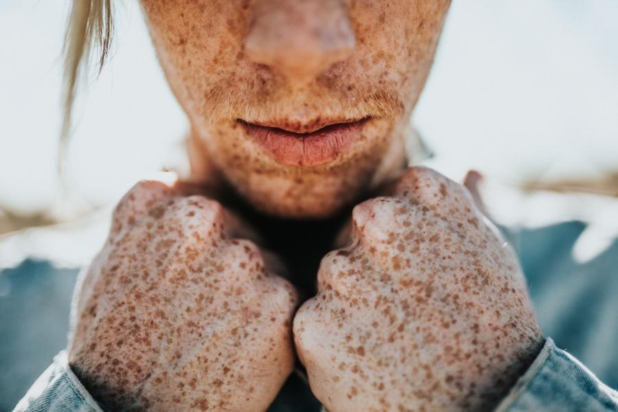 Prirodna pomoć kod hiperpigmentacije